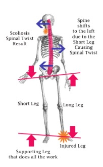 skeleton posture copy
