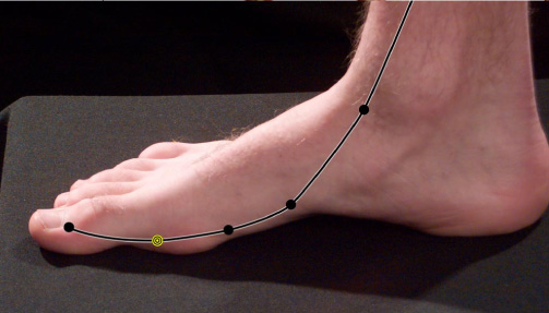 The Path of the Spleen Meridian through the Arch of the Foot